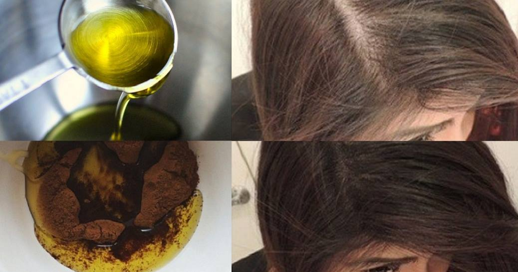 Don't Hide Your Baldness. With These 3 Ingredients Your Hair Will Grow Back Thick And Fast