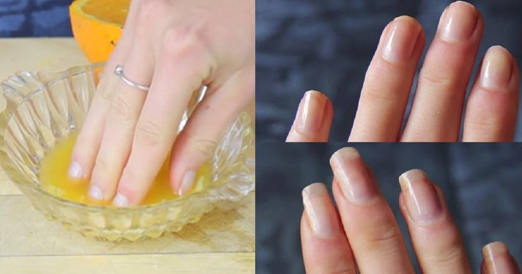Just 3 Easy Homemade Ingredients And Your Nails Will Grow Faster And Longer