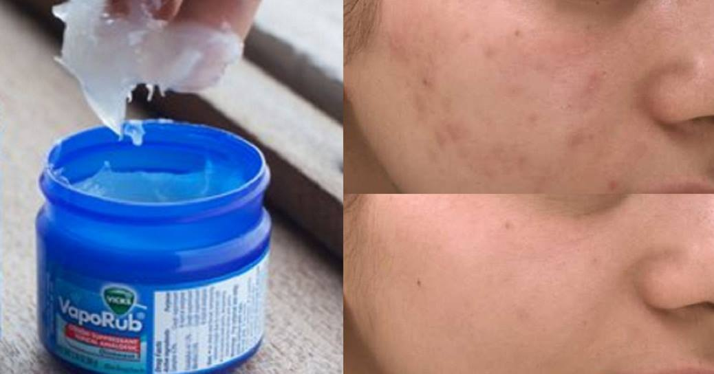 Use Vicks Vaporub To Cure Your Acne Problem Forever!