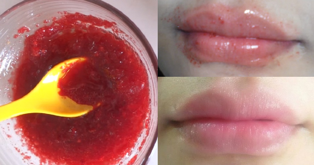 Get Rid Of Dry, Dark Lips Naturally With This Homemade Scrub