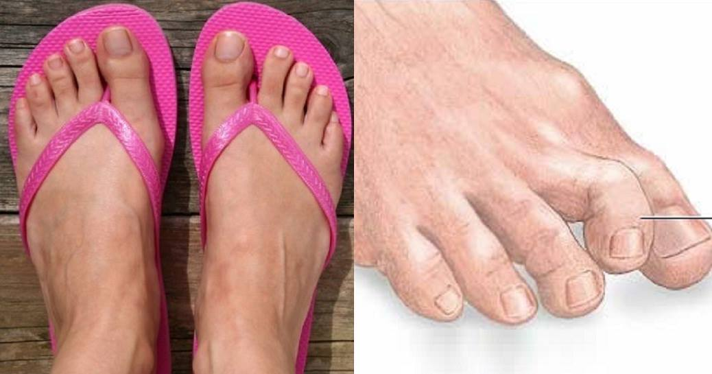 This is Why You Should NEVER Put Flip Flops On Your Feet Again