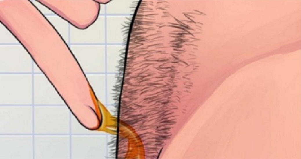 Better Than Bikini Wax Painless Way To Remove Pubic Hair