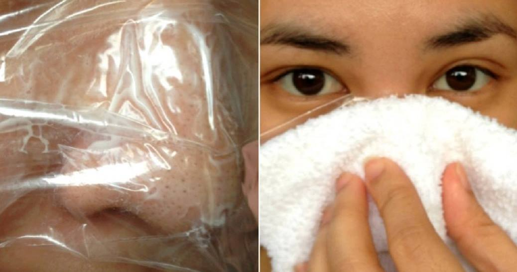 How To Remove Blackheads With Vaseline And Plastic Wrap Overnight