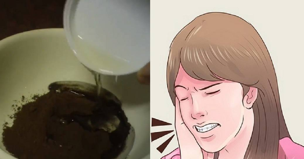 Get Rid Of Toothache At Home With This Natural Remedy In Seconds