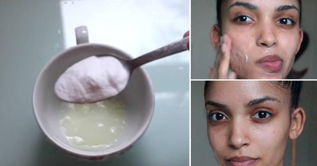 Miracle Face Mask For Fairness And To Remove Blackheads And Acne Naturally. All In One!
