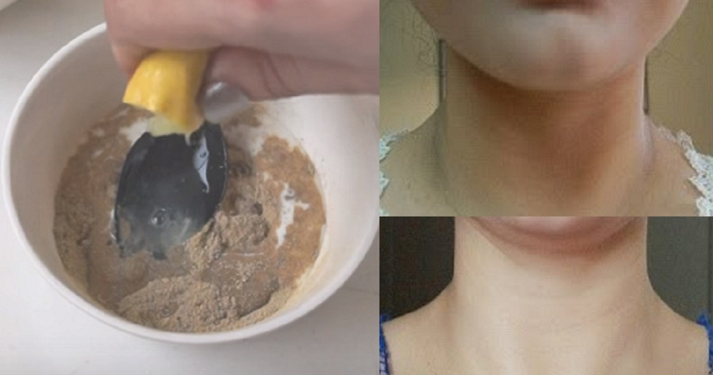 Say Goodbye To Dark Neck. Genius Formula To Get A Fair, Glowing Neck At Home In 20 Mins