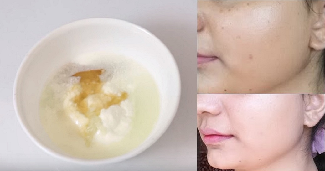 Try This Easy Homemade Recipe To Get A Clear Skin Overnight
