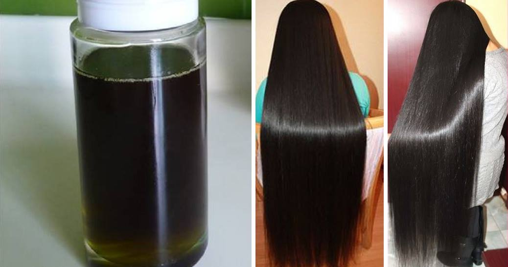 11 Best Hair Growth Oils In India That Stop Hair Loss