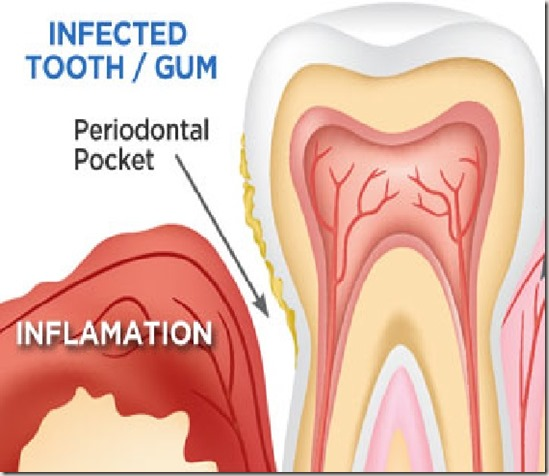 gum-infection