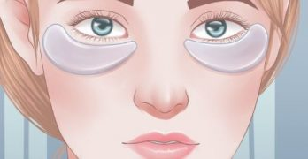Top Remedies for Puffy Eyes