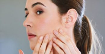 pimples solutions